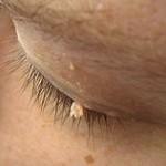 200px-Wart_filiform_eyelid