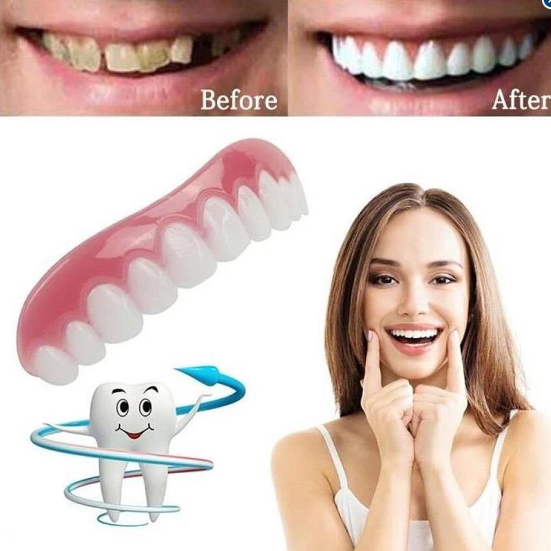 Perfect Smile Veneers ! Простой и удобный способ сделать улыбку обворожительной!
